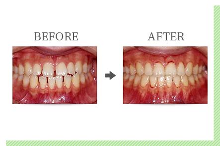 前歯だけの「部分矯正」